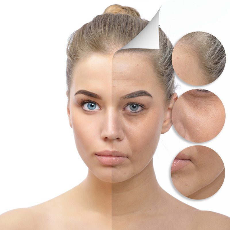 美肌は美容皮膚科へ